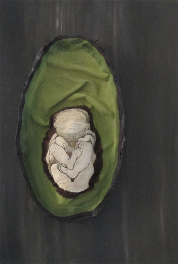 Foetus in an Avocado - Jamie Baer Swan Art
